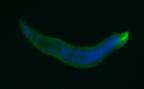 trichuris worm